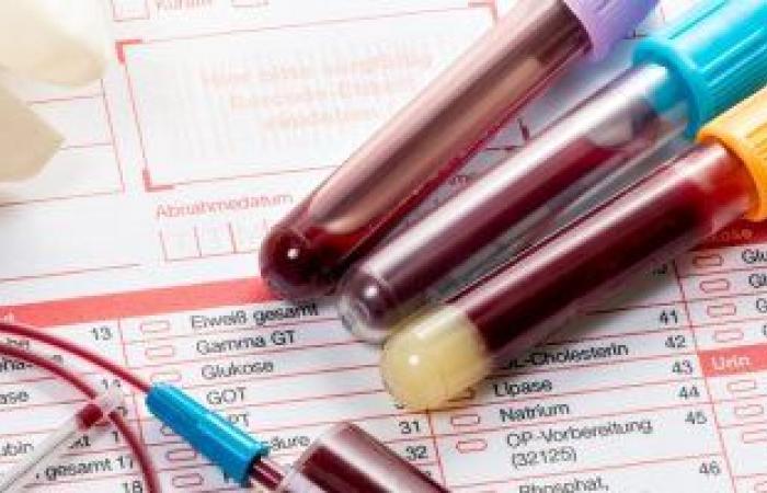 اطمن على نفسك.. لماذ يطلب الطبيب تحليل اليود فى الدم؟